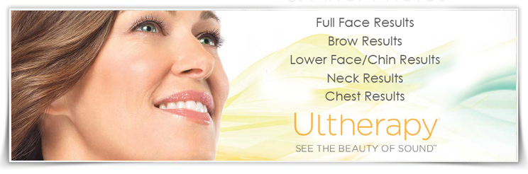 Ultherapy - See the beauty of the sound - JE Beauté